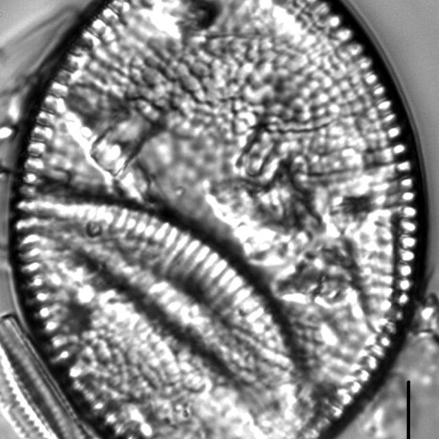 Achnanthes undulorostrata LM6