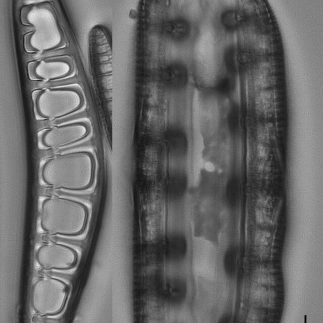 Placoneis amphibola LM4