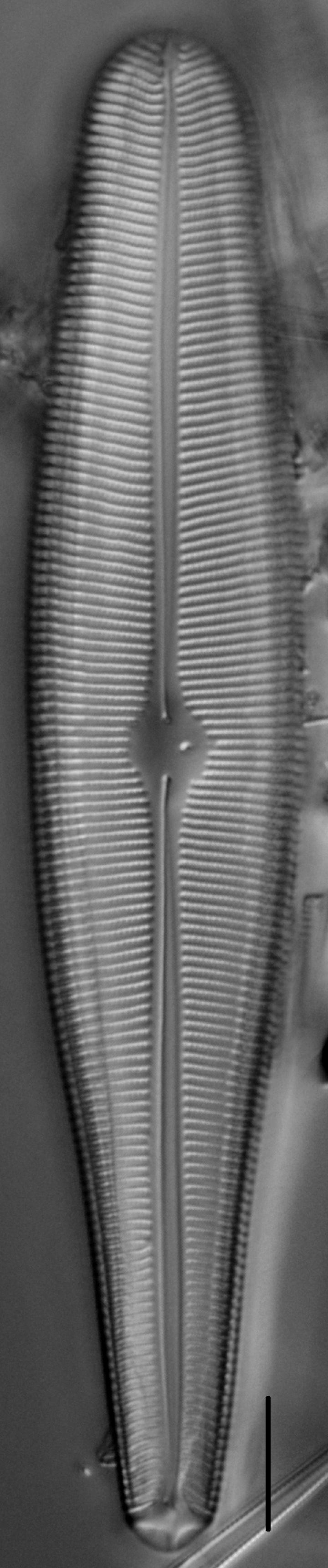 Gomphoneis herculeana var. abundans LM4