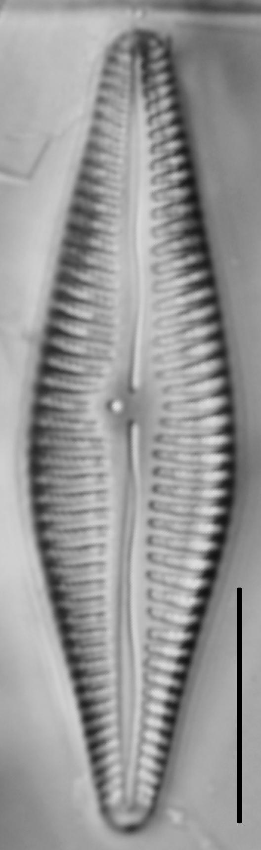 Gomphoneis eriense var. angularis LM2