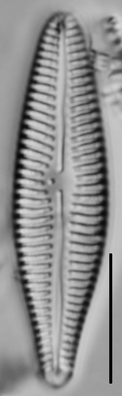 Gomphoneis eriense var. angularis LM3