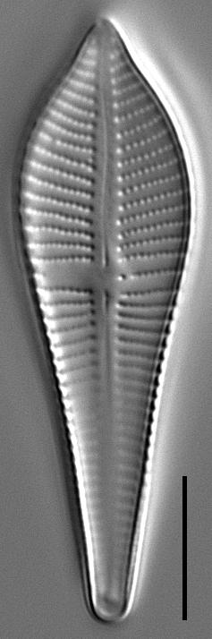 Gomphonema apicatum LM2