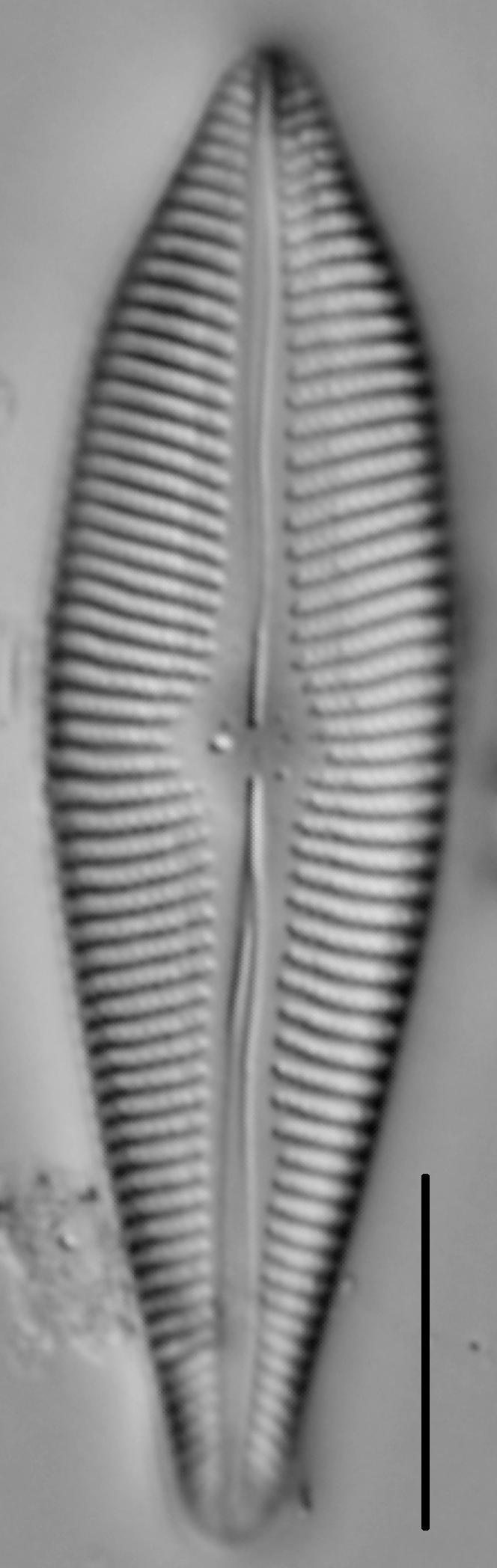 Gomphoneis eriense var. apiculata LM2