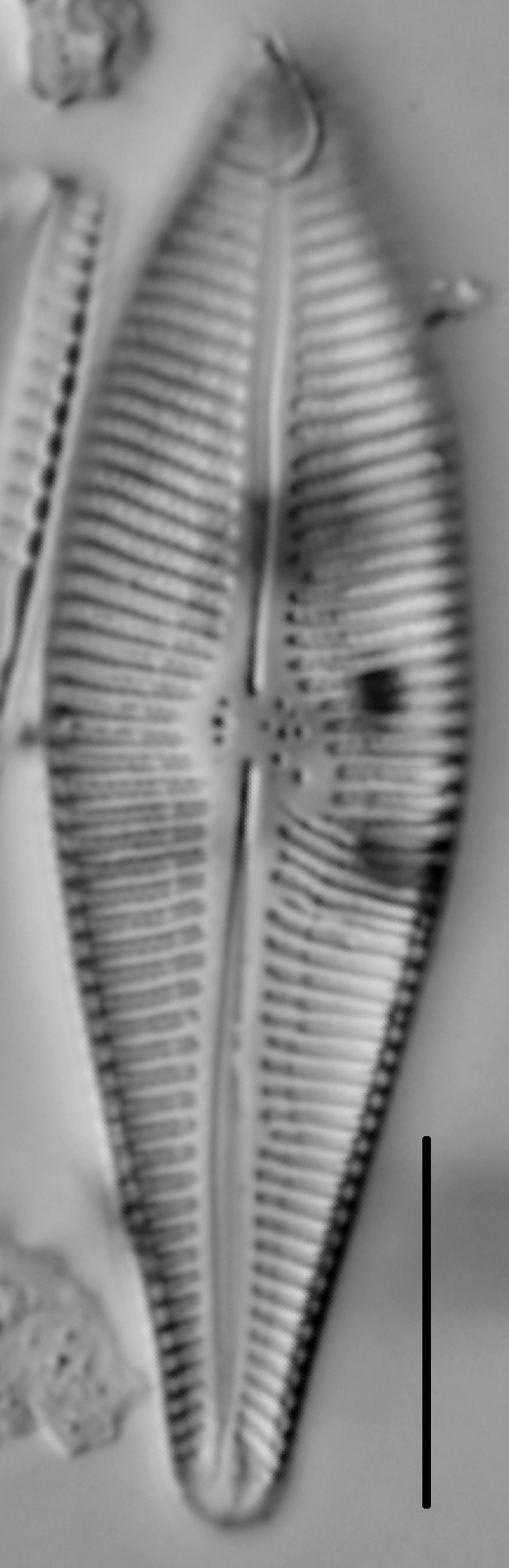 Gomphoneis eriense var. apiculata LM5