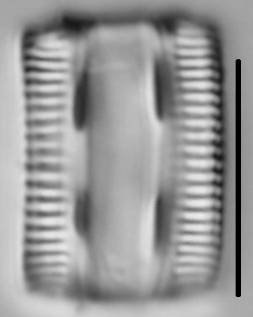 Diatomella balfouriana LM6