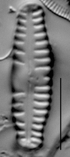 Reimeria sinuata f. antiqua LM2