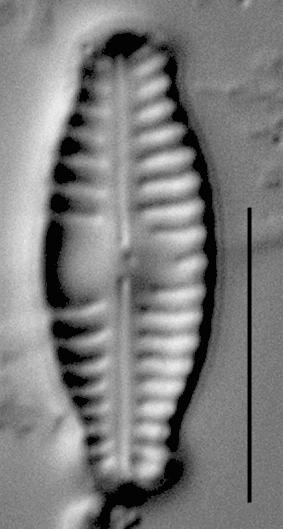Reimeria sinuata f. antiqua LM3