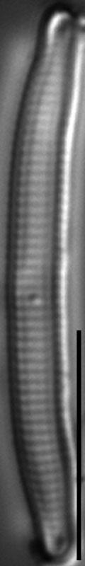 Eunotia Trinacria Long