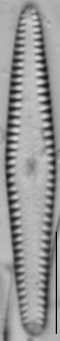 Gomphonema louisiananum LM3