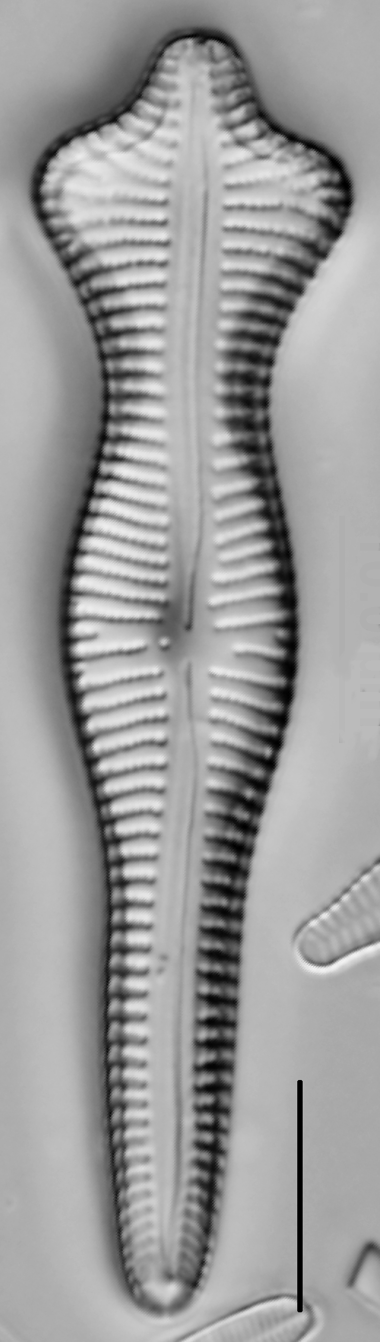 Gomphonema Acuminatum 002