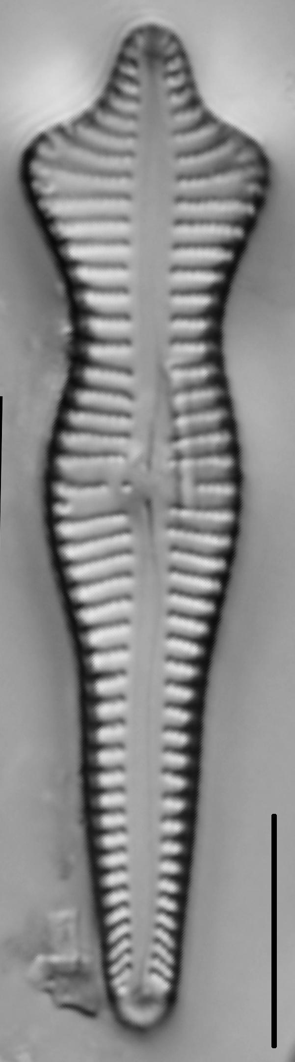 Gomphonema Acuminatum 005