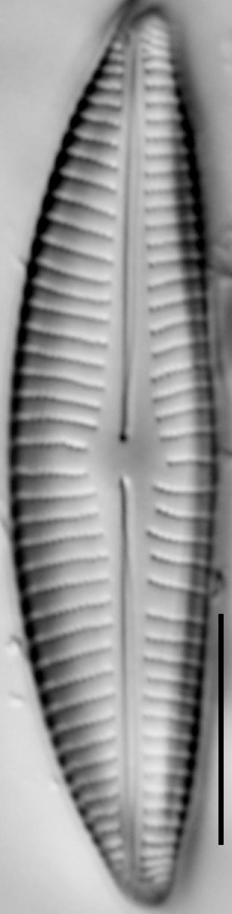Encyonema hebridicum LM4