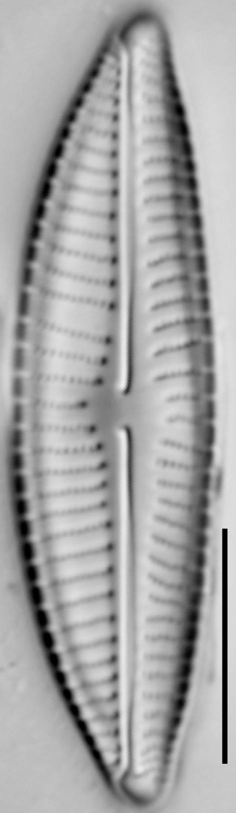 Encyonema hebridicum LM5