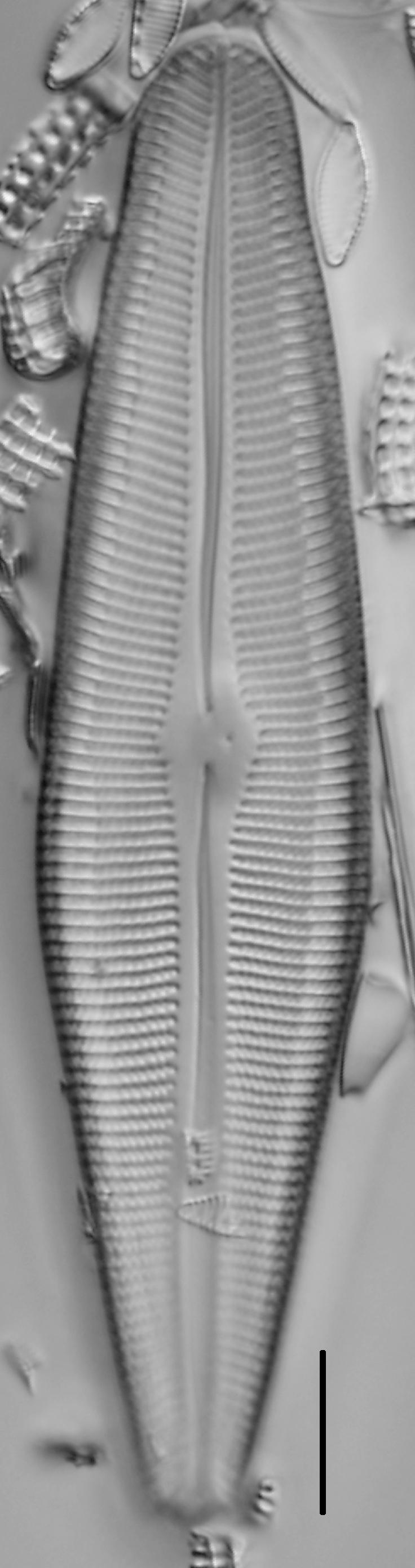 Gomphoneis herculeana var. lowei LM1