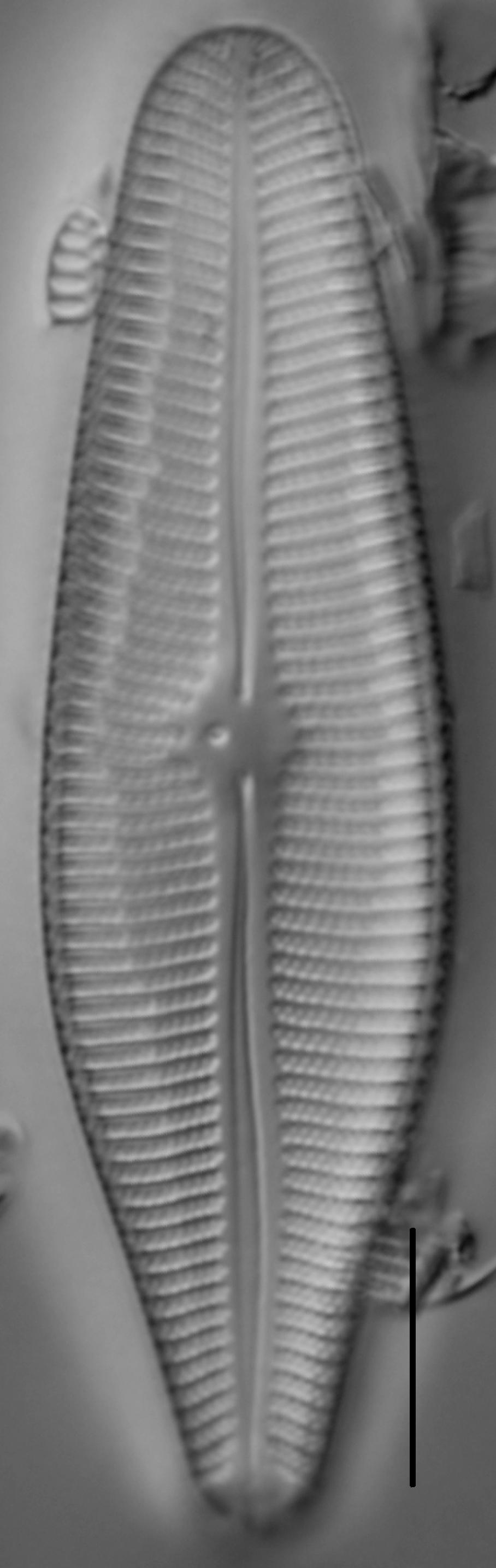 Gomphoneis herculeana var. lowei LM2