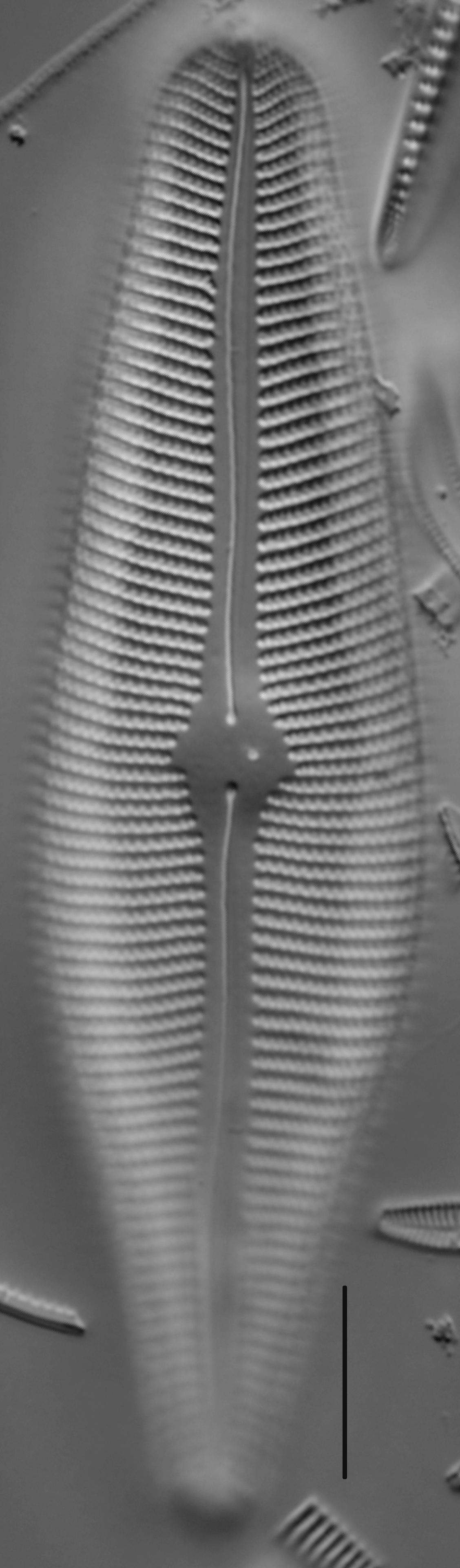 Gomphoneis herculeana var. lowei LM4