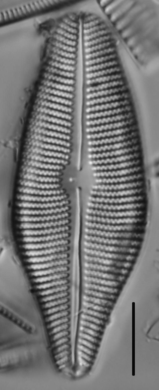 Gomphoneis herculeana var. lowei LM5