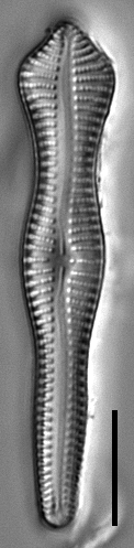 Gomphonema pusillum LM5