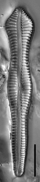 Gomphonema pusillum LM4