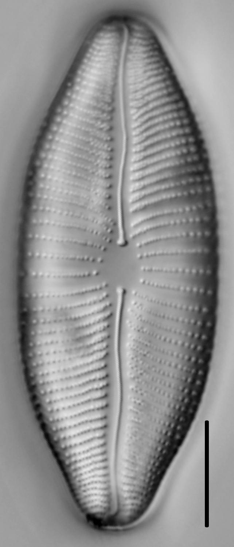 Rexlowea navicularis LM4