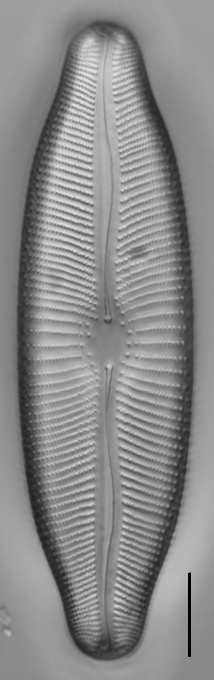 Rexlowea navicularis LM3