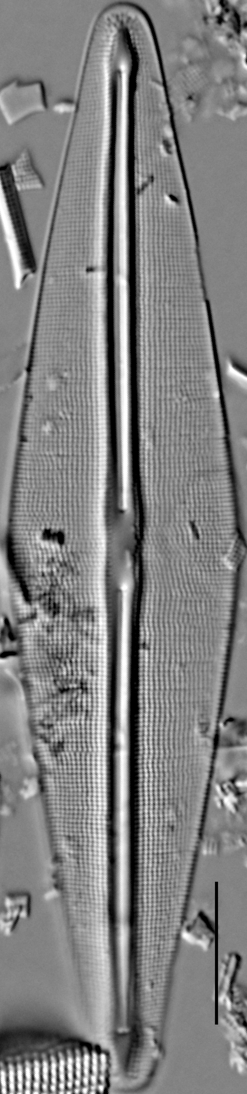 Frustulia saxonica LM5