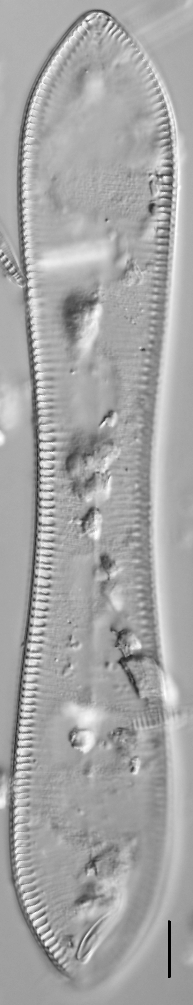 Cymatopleura solea LM1