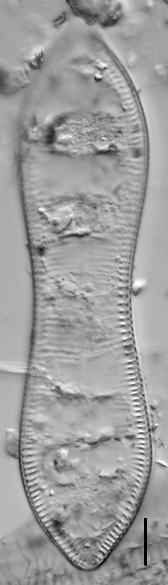 Cymatopleura solea LM3