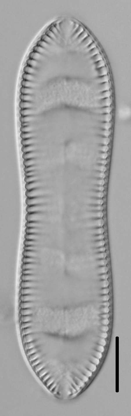 Cymatopleura solea LM4