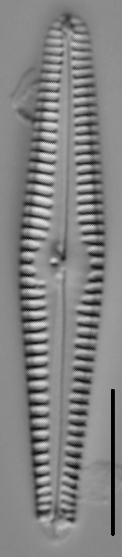 Gomphonema stoermeri LM2