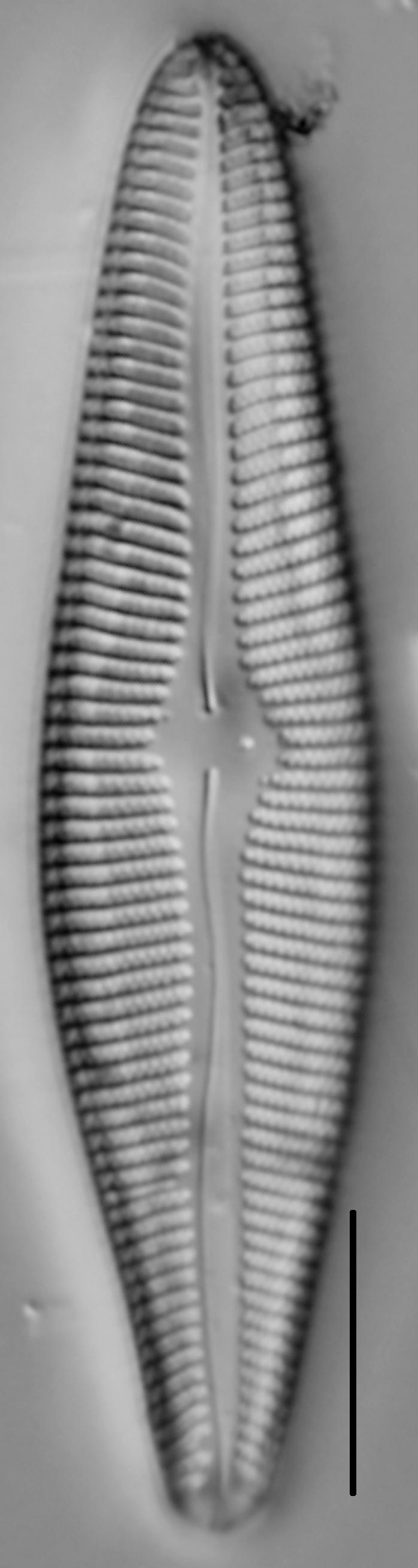Gomphoneis trullata LM5