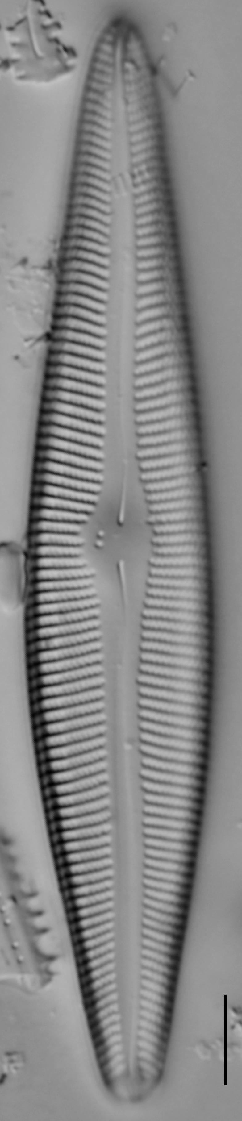 Gomphoneis trullata LM1