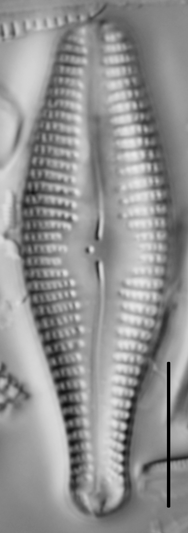 Gomphonema ventricosum LM4