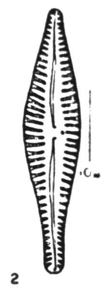 Gomphonema Gibba  Wallace 1960 Fig