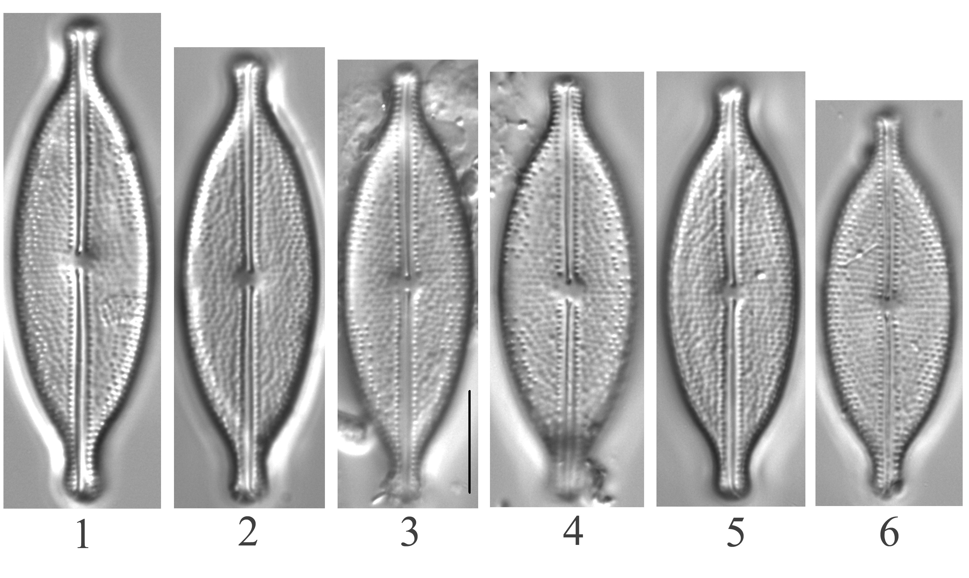 Anomoeoneis Capitata Figs1 6