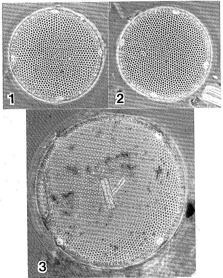 Eupodiscus radiatus LECTOTYPE