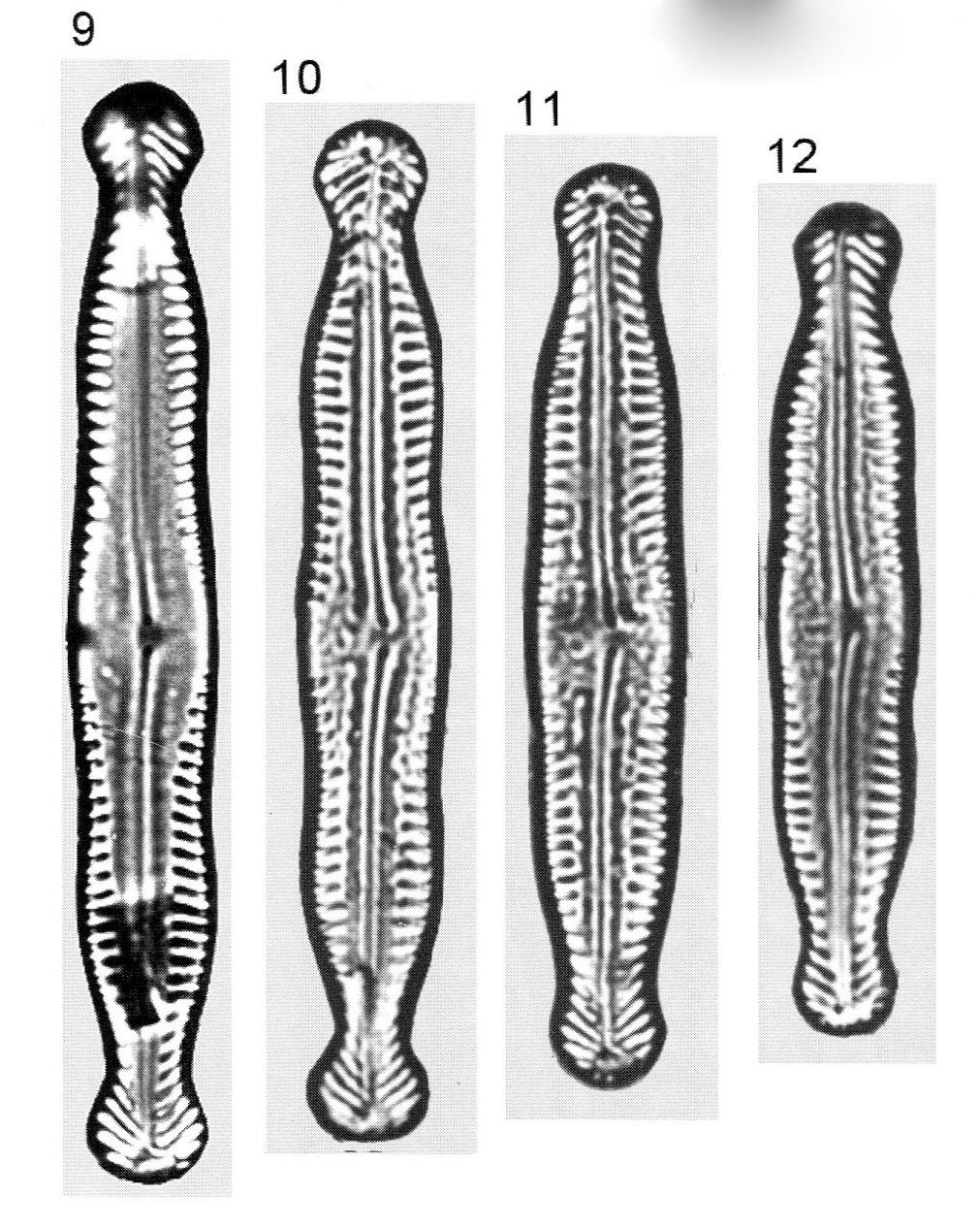 Pinnularia Nodosa Percapitata Origimag1001