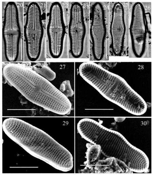 Achnanthes tumescens orig illus