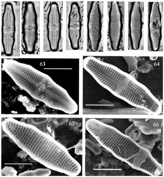 Achnanthes undulorostrata orig illus