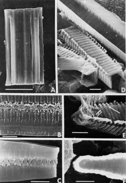 Fragilaria acidobiontica orig illus