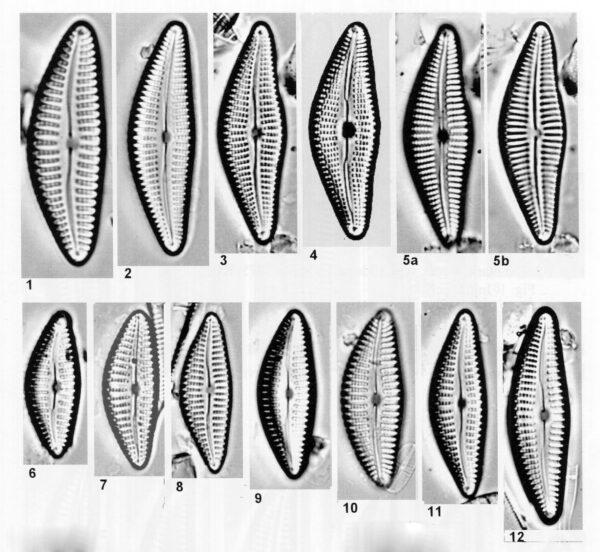 Cymbella neoleptoceros orig illus