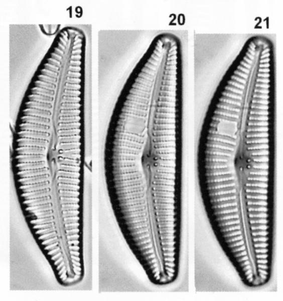 Cymbella subturgidula orig illus