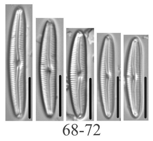Cymbopleura Tundraphila Origimag