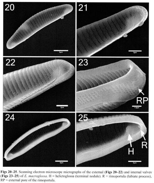 Eunotia macroglossa SEM