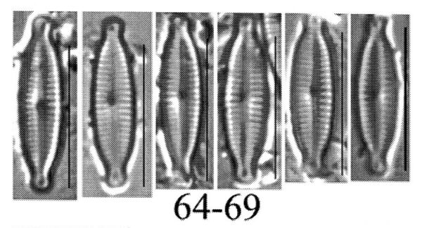 Encyonopsis lacusalpini orig illus
