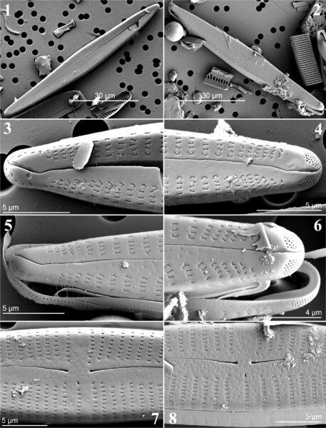 Figs1 8 Gomphonema Eileencoxiae Sem