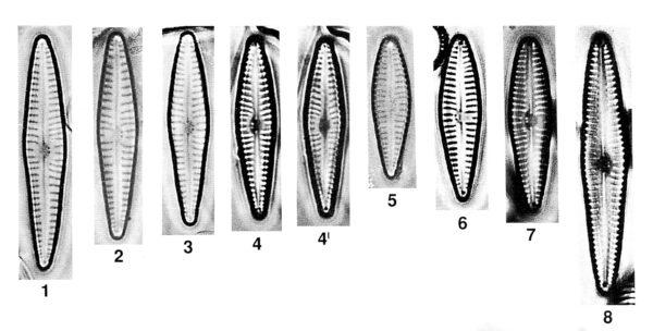 Gomphonema Duplipunctatum Origimag002