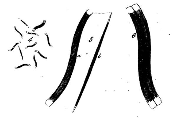 N Sigmoidea Original Image