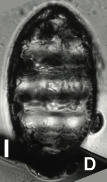 Navicula Undulata Ehrenb Orig Illus 1