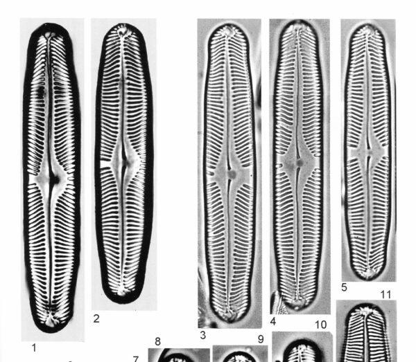 Pinnularia Rhombarea Origimag2002